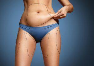 Lippo Dissolve body contouring