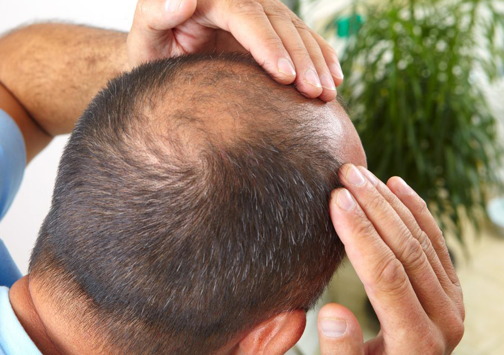 Hair Transplant in Green Park