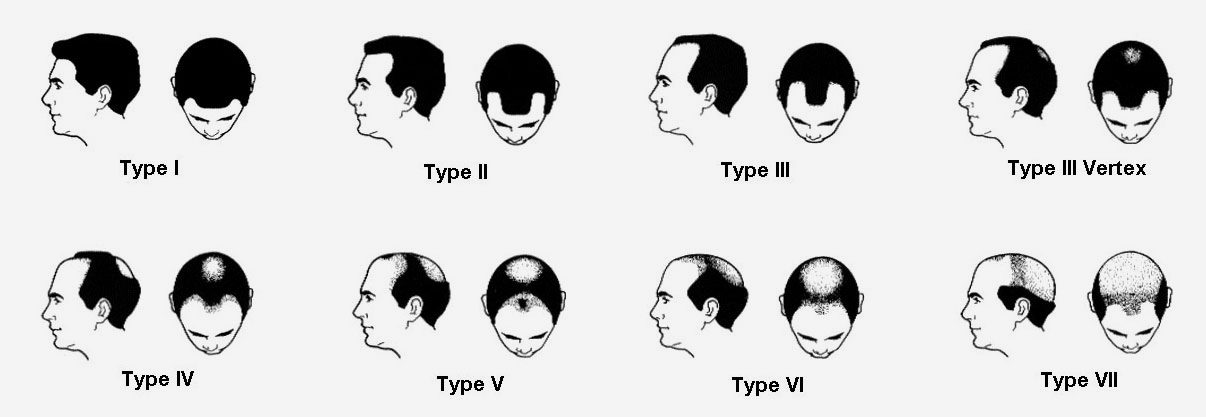 different types hair loss